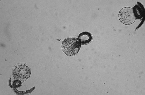 Waschbärspulwurmlarven (Joel Mills, CDC)