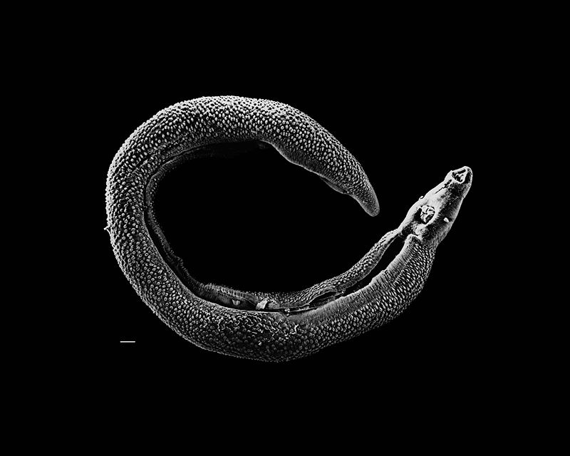 Schistosoma (David Williams, Illinois State University)