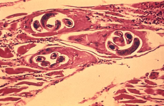 Zysten von Trichinella spiralis (CDC)