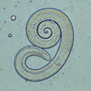 Trichinella spiralis-Larve (DPDx)